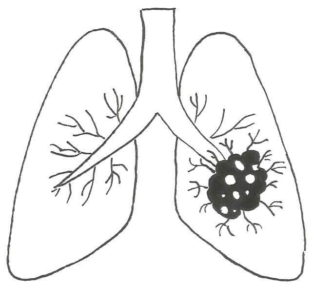 Cancer pulmons